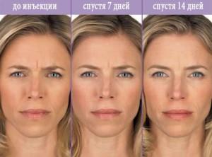 Инъекции красоты до и после