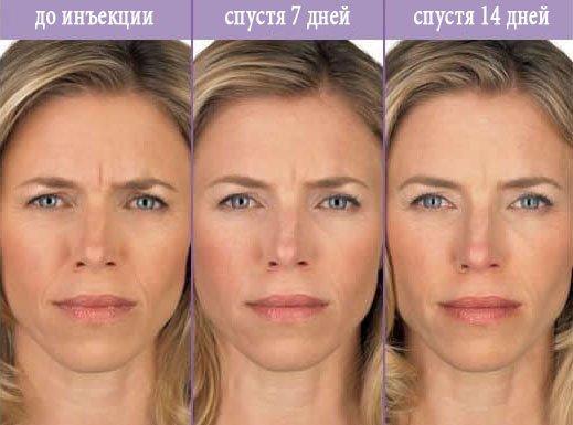 уколы ботокса до и после фото